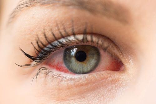 soczewki kontaktowe dla alergików