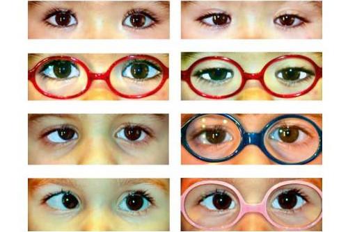 ambliopia - zespół leniwego oka