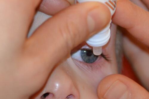 aplikowanie kropli do oczu