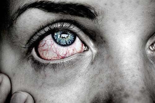 zespół czerwonego oka