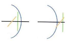 astygmatyzm złożony krótkowzroczny i nadwzroczny