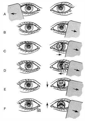 Cover Test - test zakrycia oczu