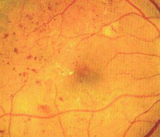 mikrotętniaki siatkówkowe w retinopatii cukrzycowej