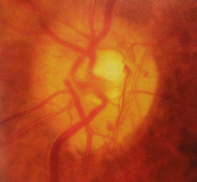 nowe naczynia na tarczy w retinopatii cukrzycowej