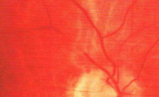 ogniskowe zwężenie tętniczek