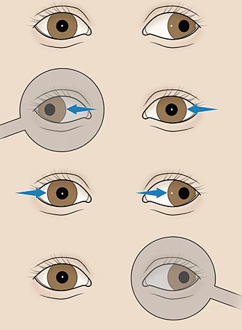 test zakrywania oczu