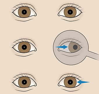 test odsłaniania oczu