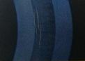 obrzęk rogówki