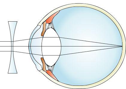 soczewki kontaktowe a krótkowzroczność
