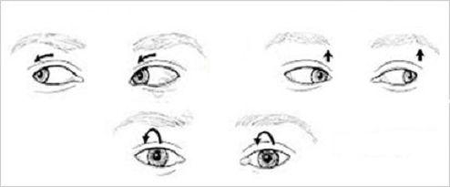 rodzaje oczopląsu