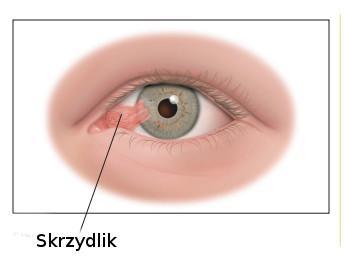 skrzydlik na oku objawy