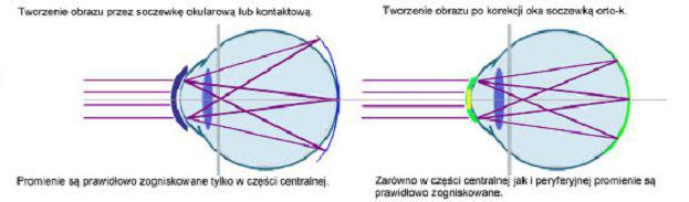soczewka okularowa a soczewka ortokeratologiczna