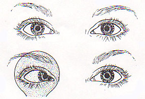 ezoforia - obserwowany obraz